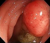 大腸癌/結腸癌症狀-大腸癌初期症狀&大腸直腸癌治療篩檢有效降低死亡率!